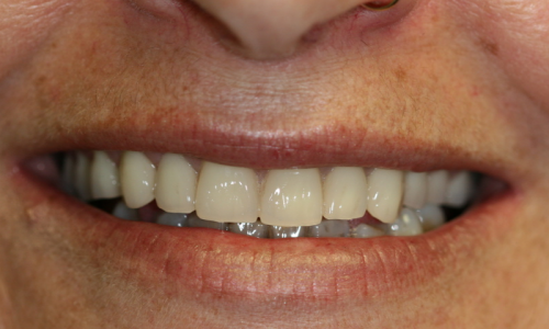 Up close of person with nice teeth smiling (immediate dentures)