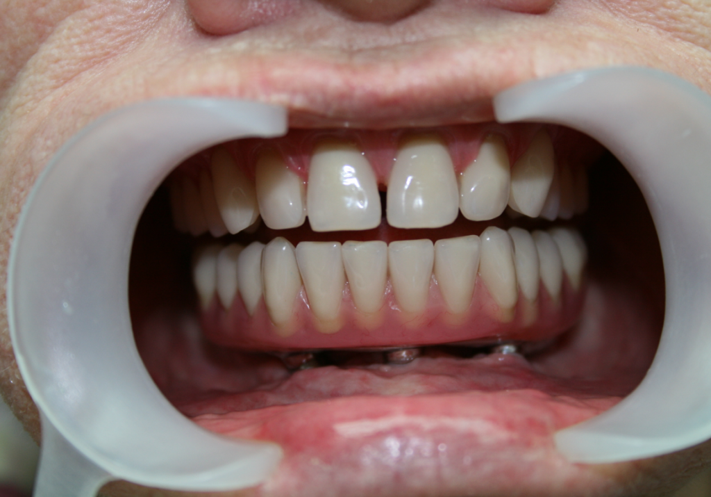 Up close image of patient with lower dental implants
