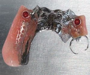 Image of partial implant retained denture on metal table