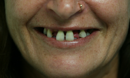 Person with multiple missing teeth smiling