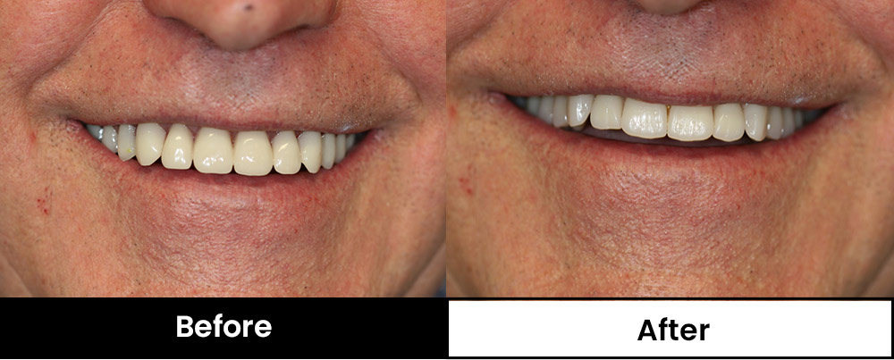 Image of patient with more natural looking dentures (before and after)