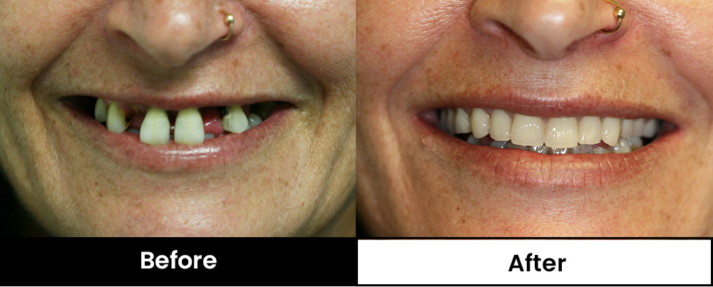 Image of patient with new partial dentures (Before and after)