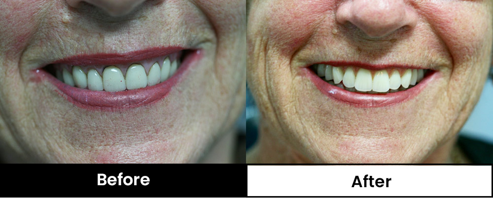 Before and after image of patient replacing old dentures