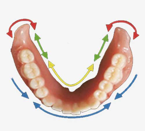 Graphic of dentures with colourful arrows going around it